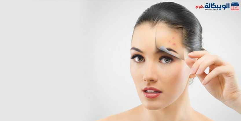 وصفات علاج بقع الوجه الداكنة طبيعيا